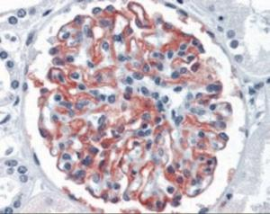 Anti-CR1 Mouse Monoclonal Antibody