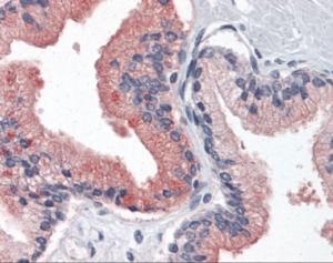Anti-B2M Mouse Monoclonal Antibody