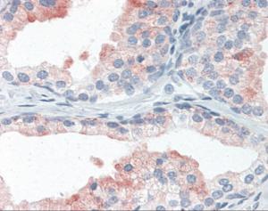 Anti-LAMP2 Mouse Monoclonal Antibody