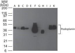 Anti-PDPN Rat monoclonal antibody unconjugated [clone: pmab-1]