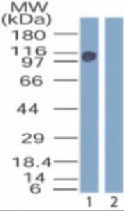 Anti-ZMYM2 Rabbit Polyclonal Antibody