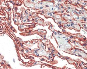 Anti-S100 A10 Mouse Monoclonal Antibody