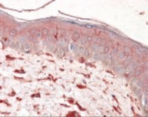 Anti-VIM Mouse Monoclonal Antibody