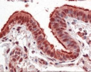 Anti-FOXP1 Mouse Monoclonal Antibody