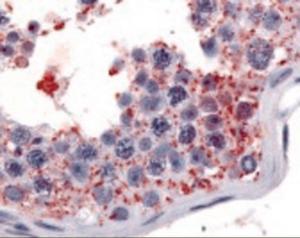 Anti-WNK1 Rabbit Polyclonal Antibody