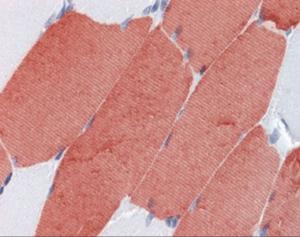 Anti-Troponin T type 3 Mouse Monoclonal Antibody