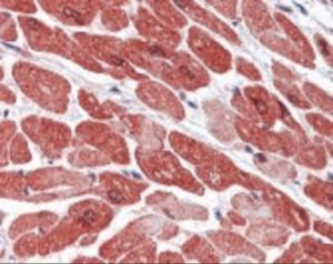 Anti-KDM1A Rabbit Polyclonal Antibody