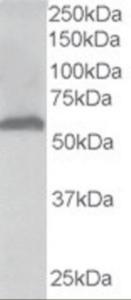 Anti-FTCD Goat Polyclonal Antibody