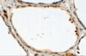 Anti-DUOX1 Goat Polyclonal Antibody