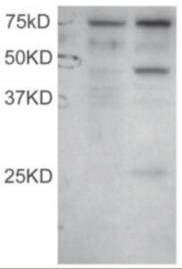 Anti-DYX1C1 Goat Polyclonal Antibody