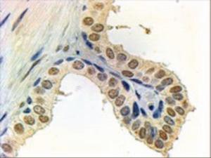 Anti-AR Goat Polyclonal Antibody
