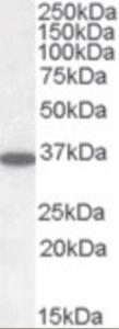 Anti-PPP2CA / PPP2CB Goat Polyclonal Antibody