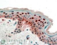 Anti-SFN Goat Polyclonal Antibody