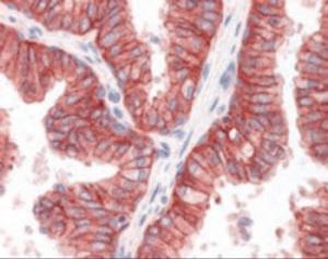 Anti-ABCC4 Goat Polyclonal Antibody
