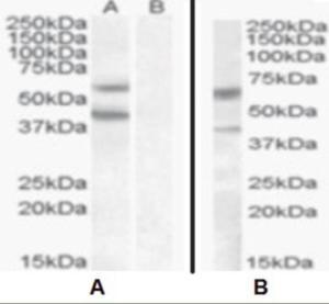 Anti-DGAT2 Goat Polyclonal Antibody